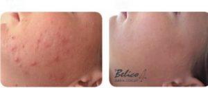 aknes gydymas|Spuogu formavimasis|Akne|Dekoratyvine kosmetika